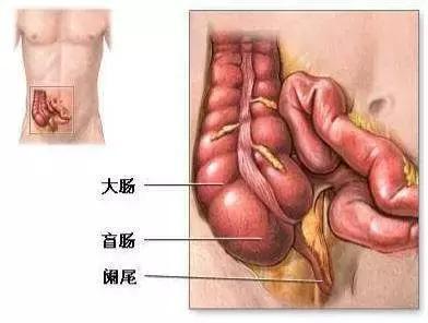 阑尾炎的疼痛位置图片,出现这些症状,您可能得了阑尾炎
