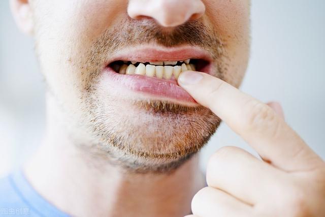 牙龈发炎怎么消炎最快,牙龈发炎怎么办?这八招学会缓解疼痛,预防牙龈炎口腔健康