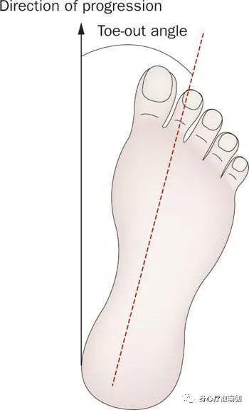 治疗外八字,瑜伽纠正外八字脚,分析成因,编排体式,恢复正位!