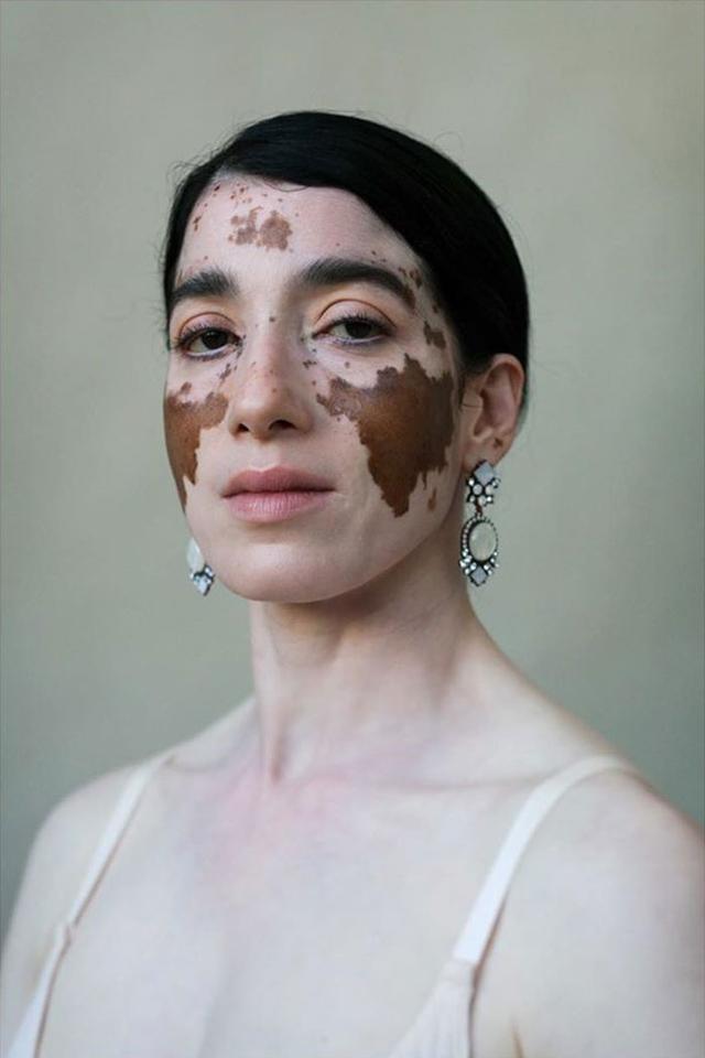 白癜风图片,一群白癜风女患者的写真,自信才是女人最大的魅力