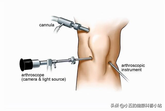膝關節咔咔作響,上下樓疼痛不適,髕骨軟化症到底該如何治療