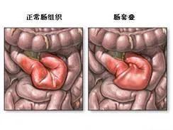 婴儿肠套叠,婴幼儿腹痛被诊断肠套叠,不能被忽视!