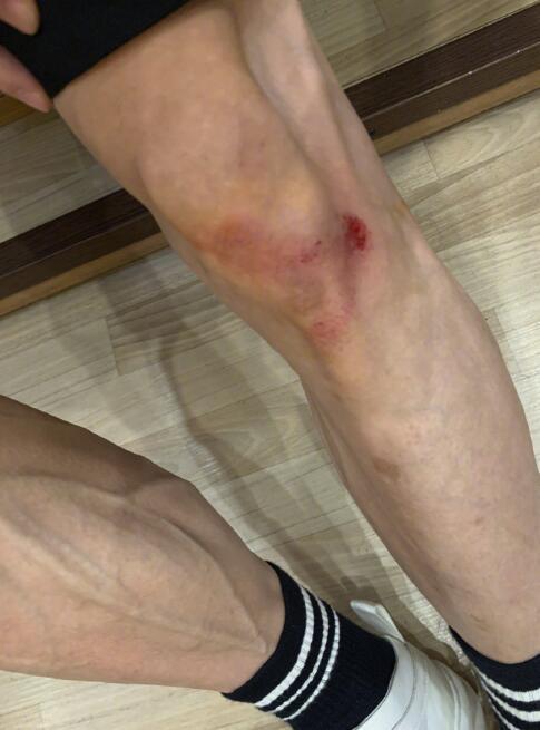 心疼!张一山运动摔伤腿 晒照自嘲上了年纪 全球新闻风头榜 第1张
