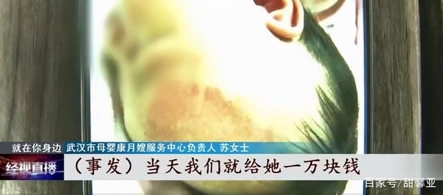 月嫂凌晨打瞌睡,新生宝宝被摔伤 全球新闻风头榜 第2张