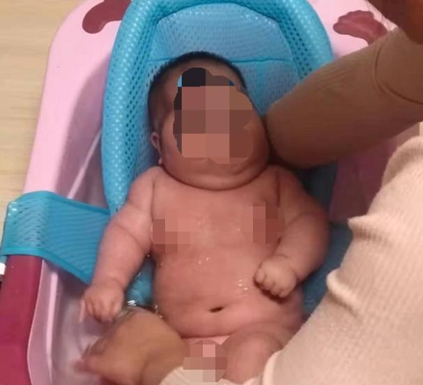 大头娃娃图片,青岛又现大头娃娃,该如何避免有害宝宝霜?医生这样说的