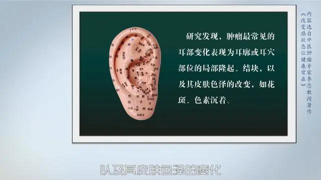 """医生提醒:癌变前,耳朵舌头会""""求救""""!厚白苔肺癌,肝瘿线肝癌"""