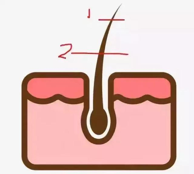 亲测 5 种脱毛形式,最最最最有效的居然是这一种 ?