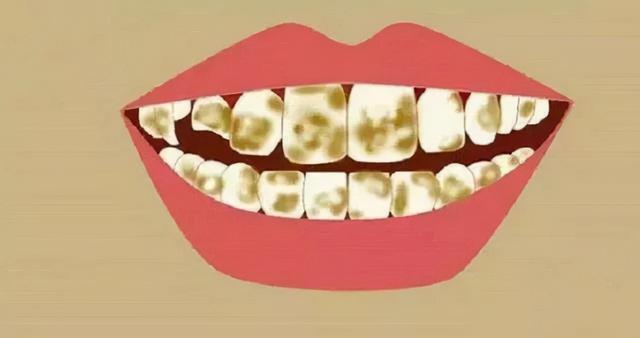 牙齿为什么越来越黄?常见的三种美白方式相识一下6425 作者:admin 帖子ID:23448