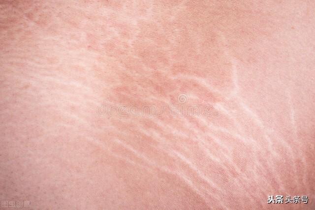 生长纹是怎么引起的 生长纹怎么去掉