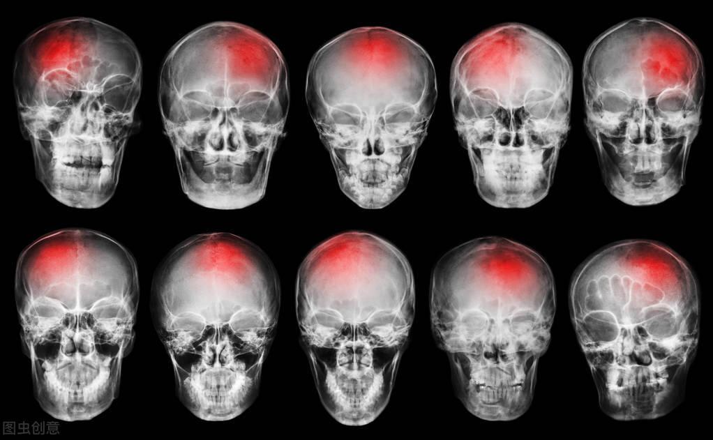 脑出血来临的这8个征兆你要知道,出现两种以上就要注意了